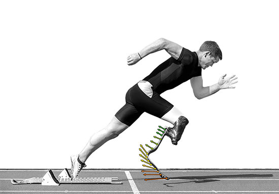 Prosthetic leg showing Digital Image Correlation measurement on it